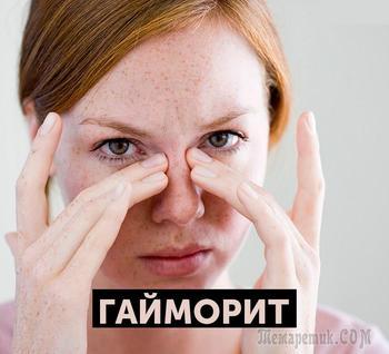 Гайморит: эффективное лечение народными средствами