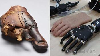10 древних (и не очень) протезов, которые вошли в историю человечества