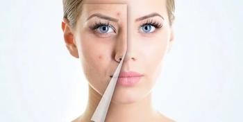 Прыщи на лице: причины и лечение народными средствами