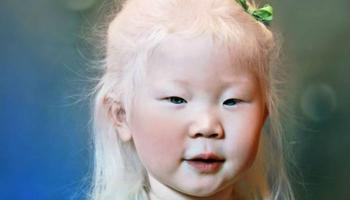 Снежная красота: удивительные альбиносы из разных стран мира