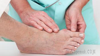 Косточка на большом пальце ноги. Причины и 5 способов лечения в домашних условиях