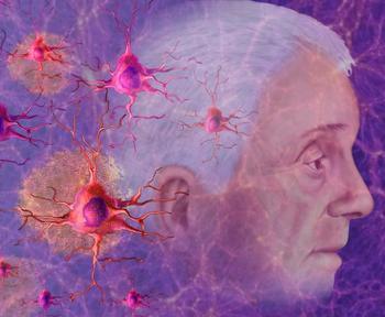 Как работает комбинация куркумина с витамином D в лечении болезни Альцгеймера