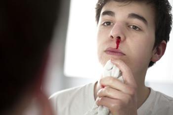 Насморк с кровью у взрослого при простуде: причины