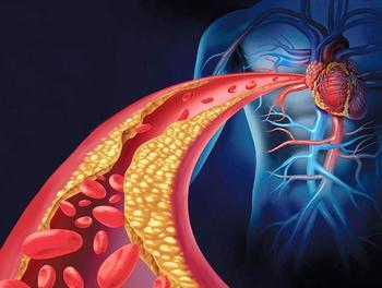 Как почистить закупоренные артерии с помощью питания