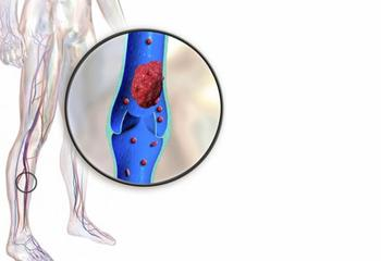 Тромбофлебит: 7 рецептов от врача-натуропата