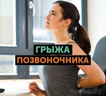 Позвоночная грыжа: симптомы и способы лечения