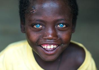 """Эфиопский мальчик с """"пластмассовыми глазами"""""""