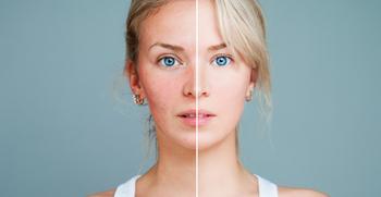 Лицо покраснело и горит: возможные причины и методы лечения