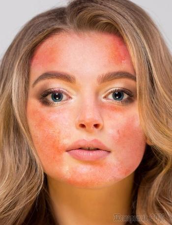 9 продуктов, которые нельзя наносить на кожу лица, по мнению дерматологов