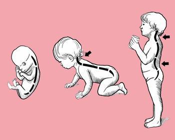 Как сохранить ребенку хорошую осанку
