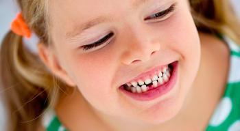 Что нужно есть ребёнку, чтобы не ходить к стоматологу?