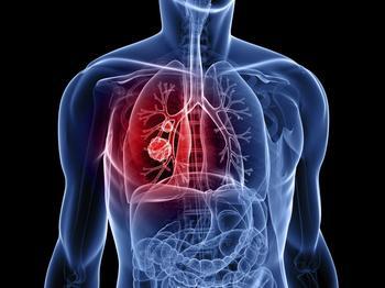 Дают ли инвалидность при бронхиальной астме: пакеты документов на инвалидность, правила их заполнения и подачи