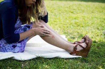 11 народных способов, как перестать кормить комаров на улице