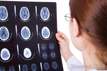 Рак мозга – симптомы, признаки, стадии, диагностика и лечение