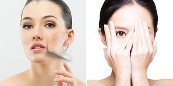 K-beauty: 10 шагов к идеальной коже