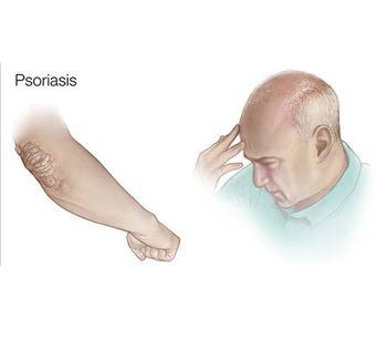 Псориаз: лечение перекисью водорода