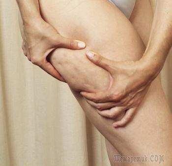 Как убрать целлюлит? Антицеллюлитное обертывание с уксусным тестом