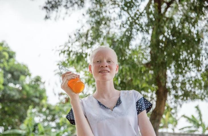 Невероятно: люди-альбиносы в Конго! альбиносы, африка, белые чернокожие, удивительное