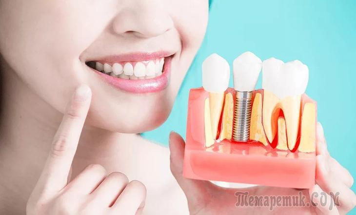 Редкие зубы: как исправить, фото до и после, способы исправления. Редкие зубы у ребенка