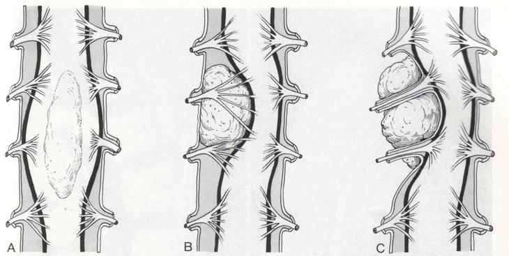 Удаление опухоли спинного мозга