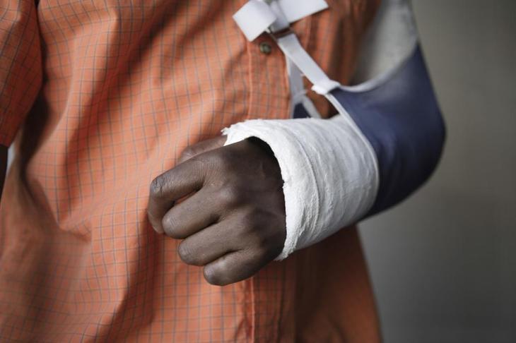 Легкие телесные повреждения и наказание за их нанесение по УК РФ