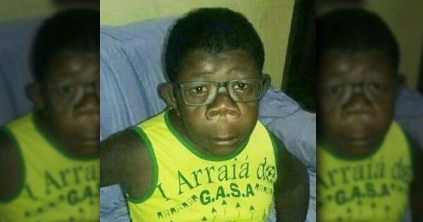 В Анголе нашли мальчика, «рождённого от человека и шимпанзе»
