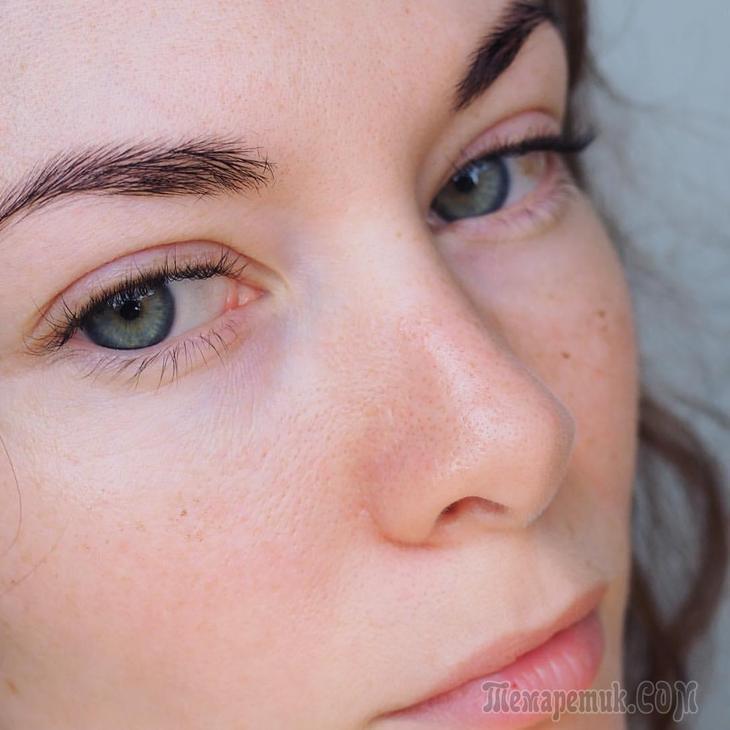 Красные капилляры в глазах: причины появления, лечение и профилактика