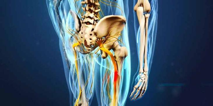 Что такое ишиас, где находится седалищный нерв?