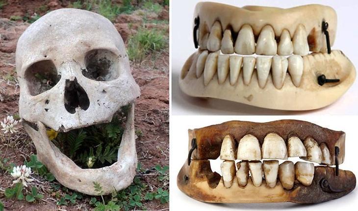 Зубы Ватерлоо интересное, люди, мистика, необычное, поступки, странности, факты, явления