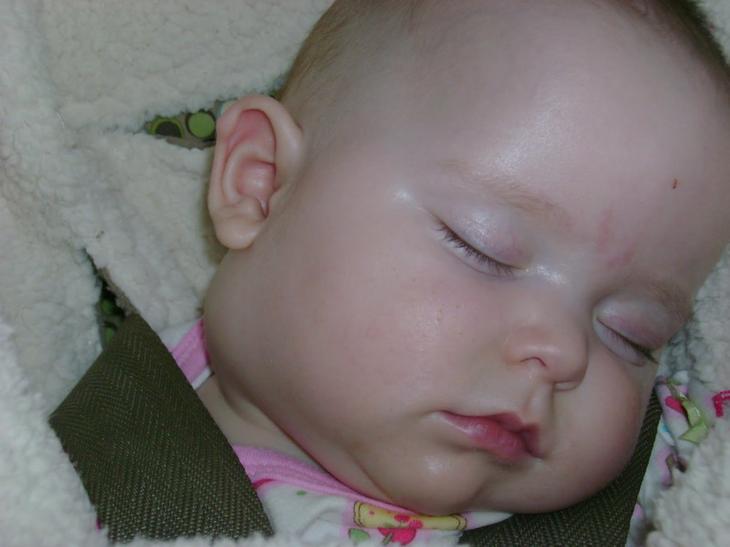 Воспаление лимфоузлов на голове