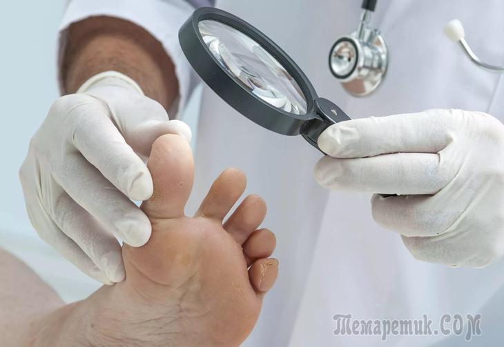 Грибок ногтей убить в организме