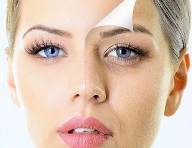 Как убрать гусиные лапки вокруг глаз?