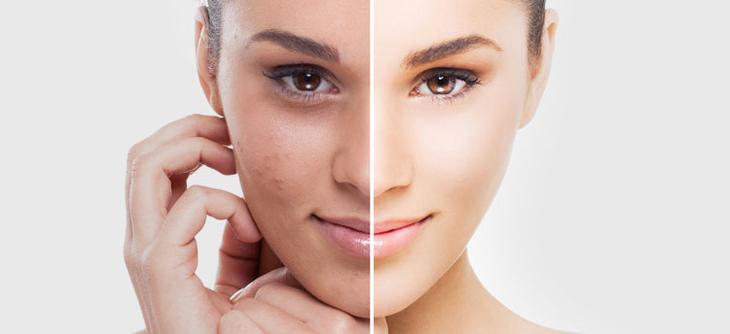 Какой результат на кожу дает чистка лица в домашних условиях
