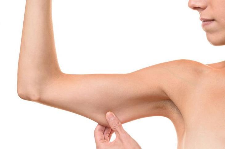 обвисшая кожа после похудения
