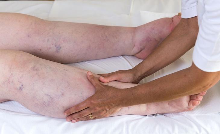 Нарушения оттока лимфы – одна из причин отечности ног