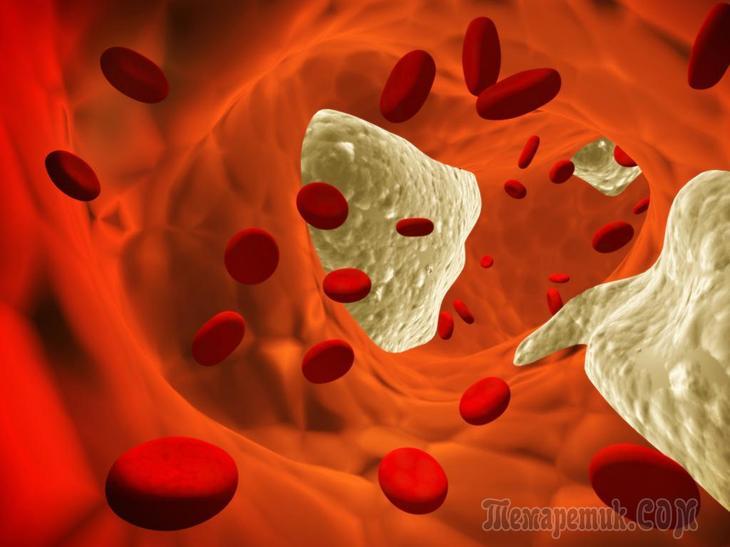 Как избавиться от холестерина в домашних условиях?