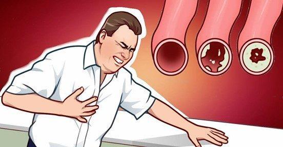 17 продуктов, которые очистят ваши артерии