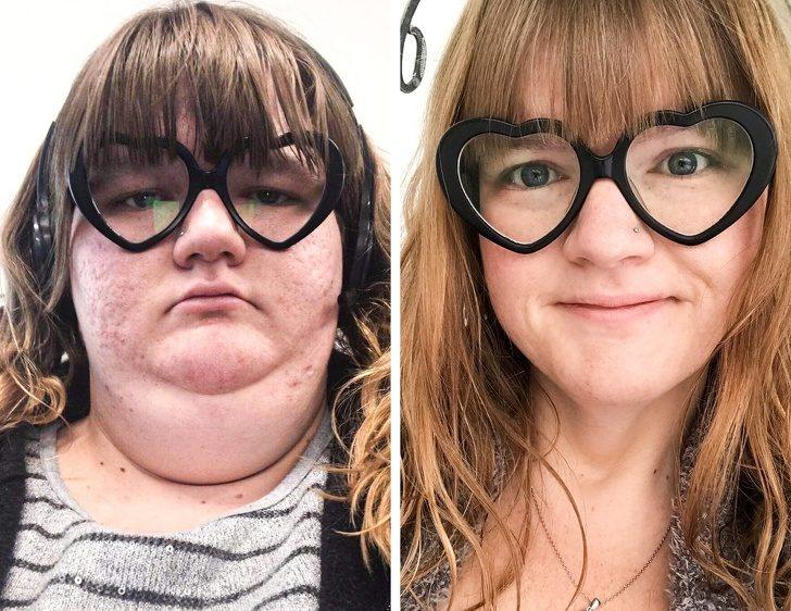 Как сильно меняется лицо, когда прощаешься с лишними килограммами