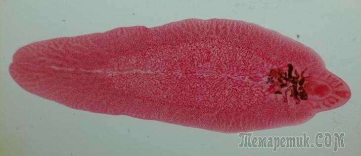 какие паразиты живут в печени человека фото