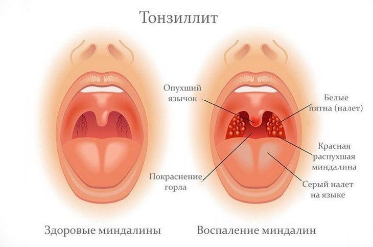 Как выглядит тонзиллит