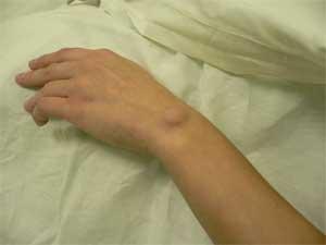 Гигрома лучезапястного сустава кисти лечение