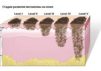 Меланома кожи прогнозы жизни, симптомы и лечение