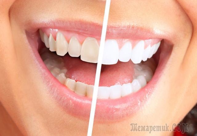 Чистка зубов пищевой содой - способ вернуть красивую улыбку