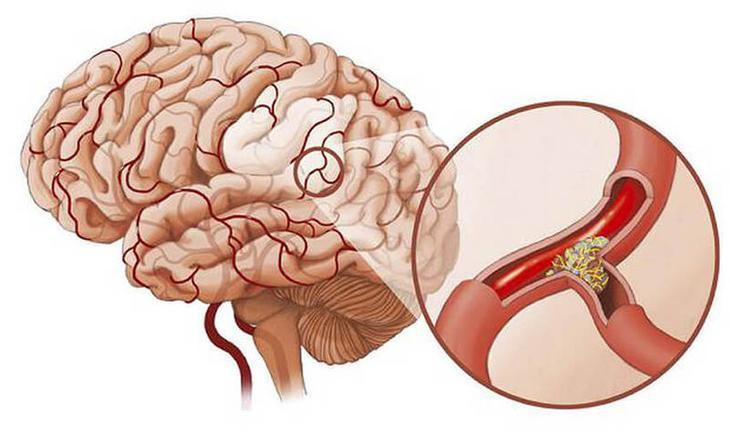 Высокое давление и шум в голове: Как вернуть сосудам эластичность без таблеток