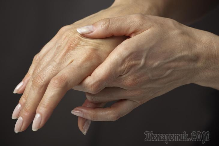 Изображение - Пятна на суставах рук fullsize