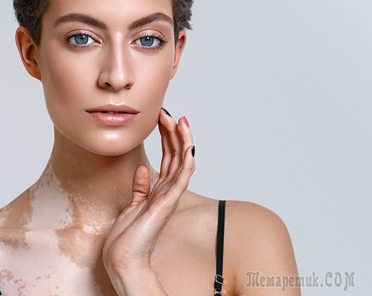 Пигментация кожи после грибка - Все про грибок